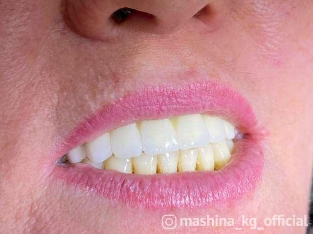 Другие - Имплантация зубов -Цена со скидкой: 220$ вместо 3